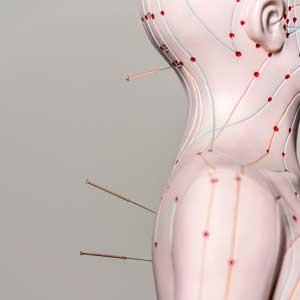 Akupunktur beim Orthopäden in Essen